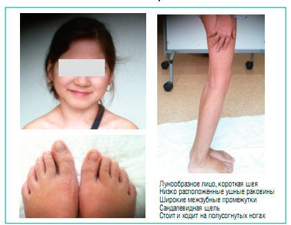 Синдром олбрайта: причины, симптомы, лечение