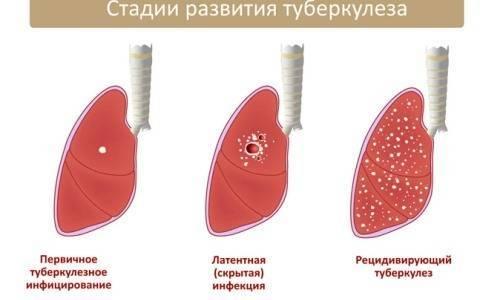 Как жить с туберкулезом легких: что можно и нельзя делать?