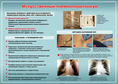 Поддувание легких при туберкулезе: описание процедуры. лечение пневмоторакса в случае пневмоторакса необходимо