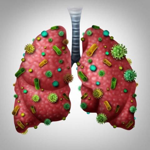 Кандидоз легких: причины заболевания, основные симптомы, лечение и профилактика