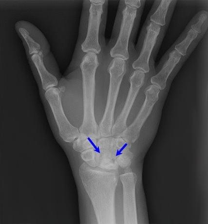 """""""перелом лучевой кости: виды и симптомы, диагностика, принципы лечения"""""""