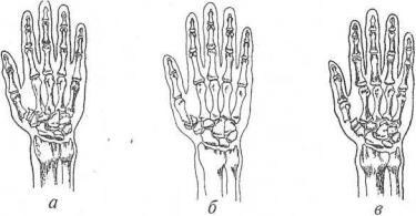 Перелом головки лучевой кости: виды травмы и способы лечения