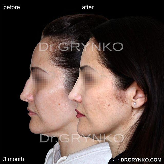 ринопластика (пластика носа): сделать операцию в москве | цены, фото до-после, отзывы | клиника beauty space clinic