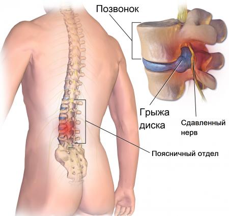 Поясничная дорсопатия: как победить боль