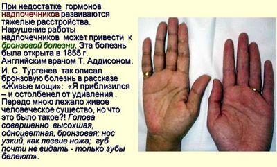 Болезнь аддисона. причины, симптомы, диагностика и лечение патологии :: polismed.com