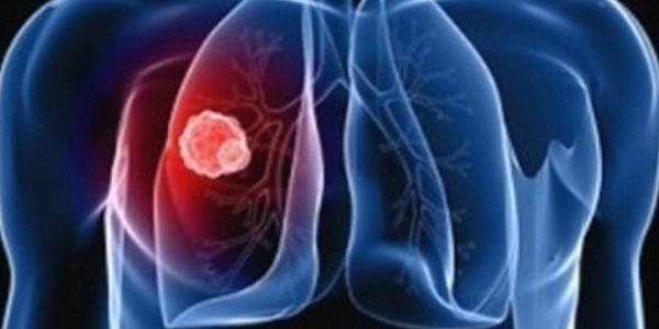 Симптомы на ранних стадиях и лечение туберкулеза легких у взрослых