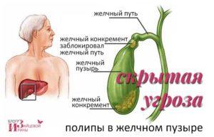 Симптомы и лечение полипов желчного пузыря — медицинские рекомендации