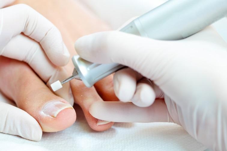 Вросший ноготь на большом пальце ноги: способы лечения