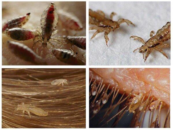Вши и гниды: причины появления, виды, симптомы и лечение педикулёза