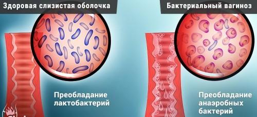 Бактериальный вагиноз: причины, симптомы, диагностика и лечение