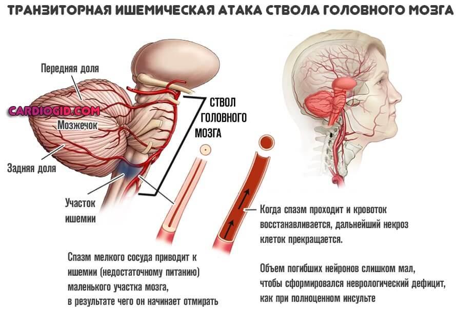 Онемение левой части головы и лица причины