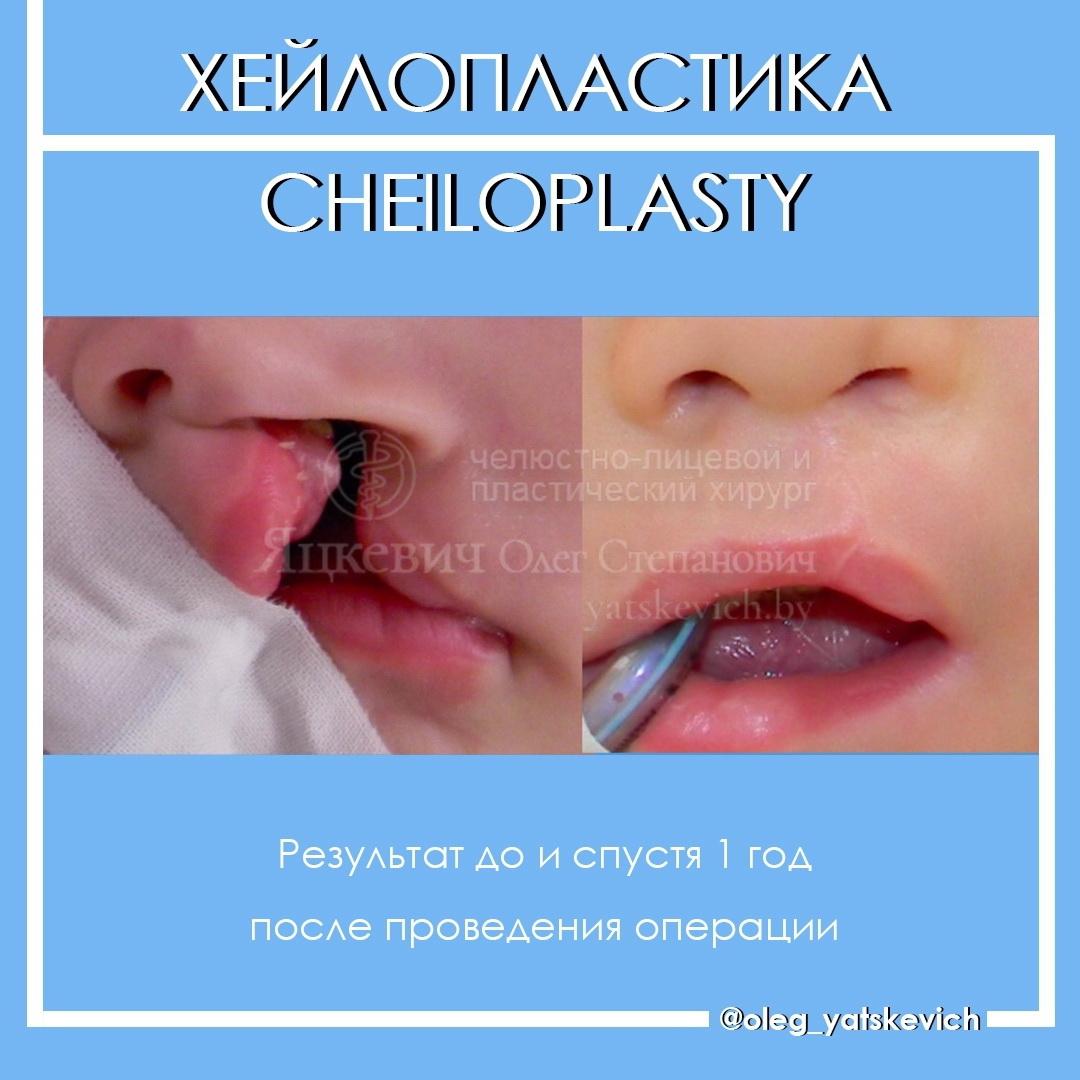 Заячья губа у человека причины. хейлосхизис (волчья пасть, заячья губа): что это, причины возникновения, симптомы, фото детей до и после операции
