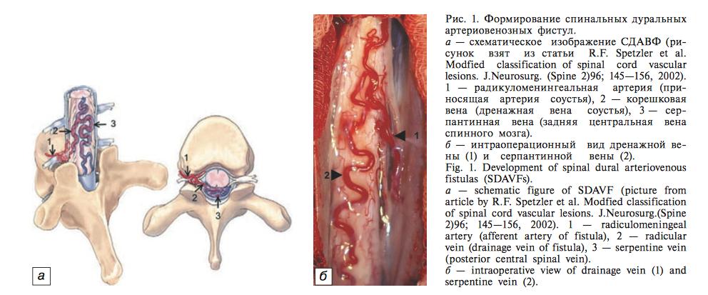 Артериовенозная фистула - dural arteriovenous fistula