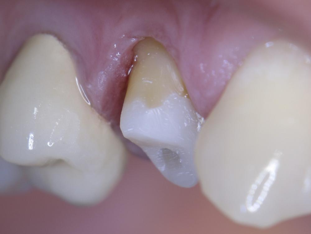 Штифты в зубе