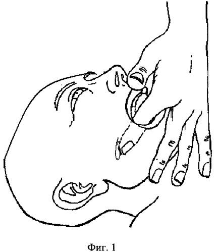 Суставной синдром: причины, диагностика, лечение