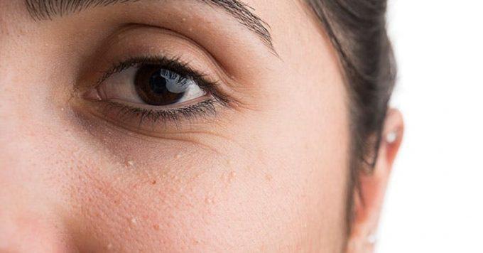Как бороться с милиумами на лице