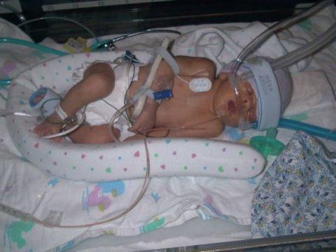 Пневмония у новорожденных детей (внутриутробная, врожденная): причины и последствия