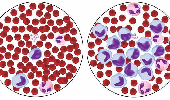 Лимфоцитоз и повышенные лимфоциты в крови: определение и причины