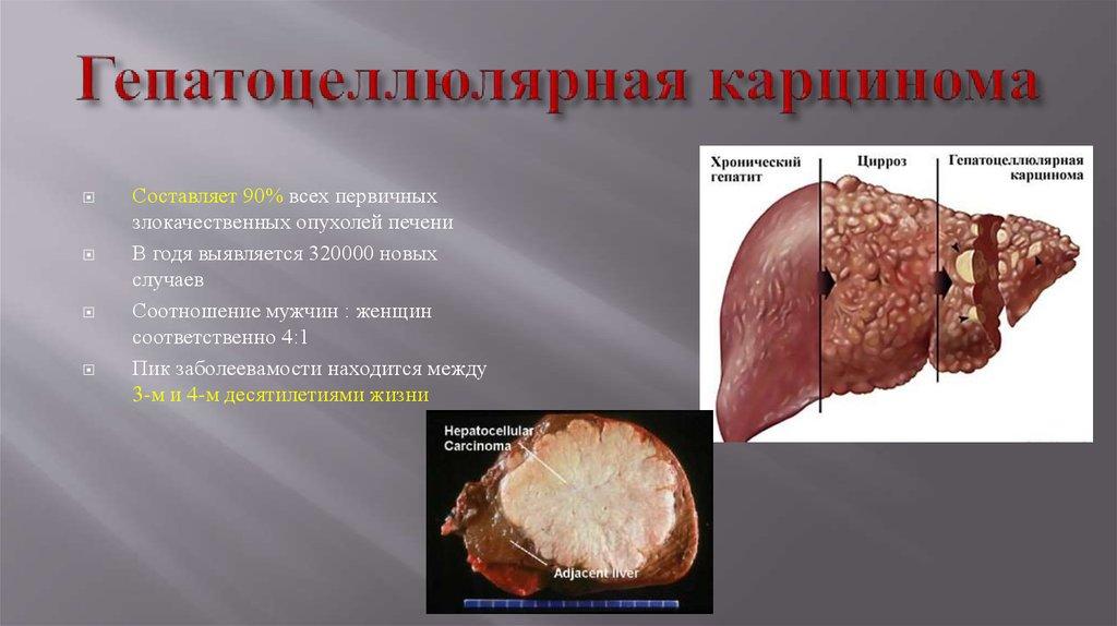 Гемангиома печени – симптомы, лечение, диета, причины