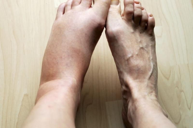 6 самых распространенных заболеваний, при которых бывает тяжесть в ногах