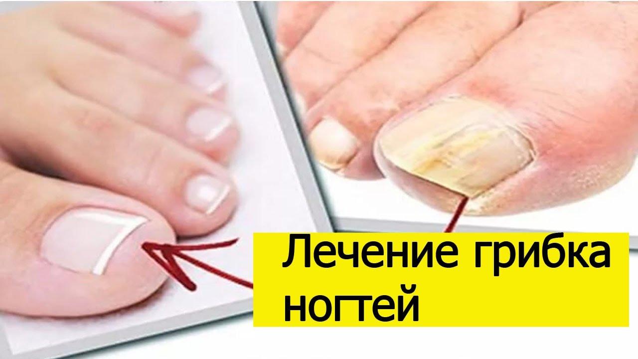 Паховая эпидермофития у мужчин - лечение в домашних условиях мазями и противогрибковыми средствами