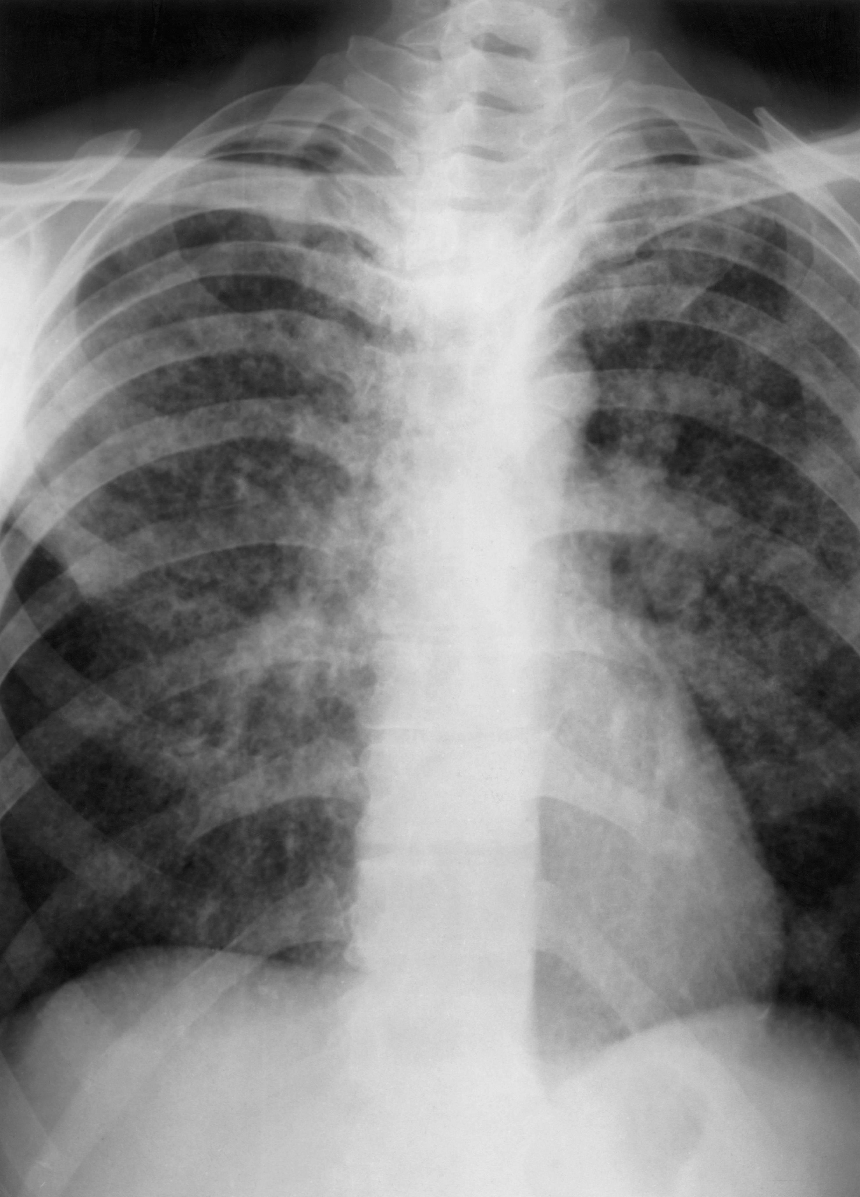 Особенности течения сахарного диабета у больных туберкулезом