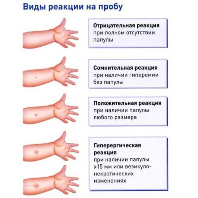Норма манту в 6 лет: реакция у детей, размер 10, 13 и 15 мм, большая и отрицательная проба, таблица, фото