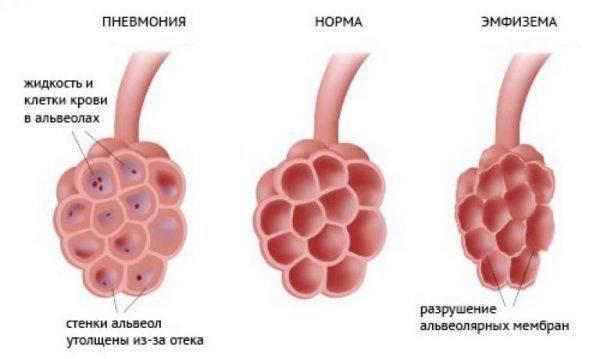 Как проявляется прикорневая пневмония у детей?