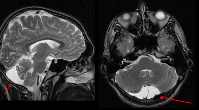 Последствия арахноидальной кисты головного мозга