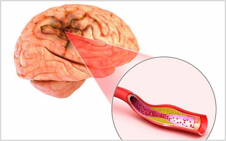 Симптомы и лечение ишемии головного мозга у ребенка