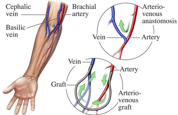 Артериовенозная фистула: причины заболевания, основные симптомы, лечение и профилактика