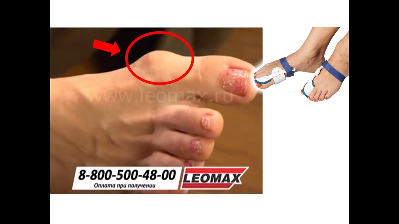Ортопедический фиксатор для коррекции косточки большого пальца ноги — обзор и отзывы