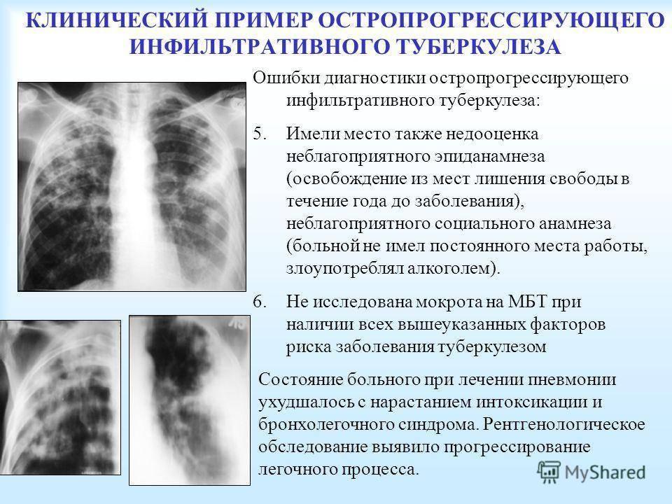 Сочетание туберкулеза и сахарного диабета - особенности течения