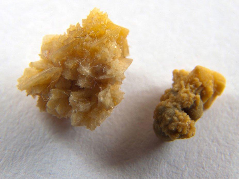 Диета при оксалурии, мочекаменной болезни и оксалатах в моче: питание при повышенных солях в моче