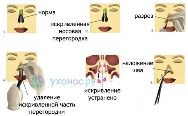 Перелом костей носа без смещения