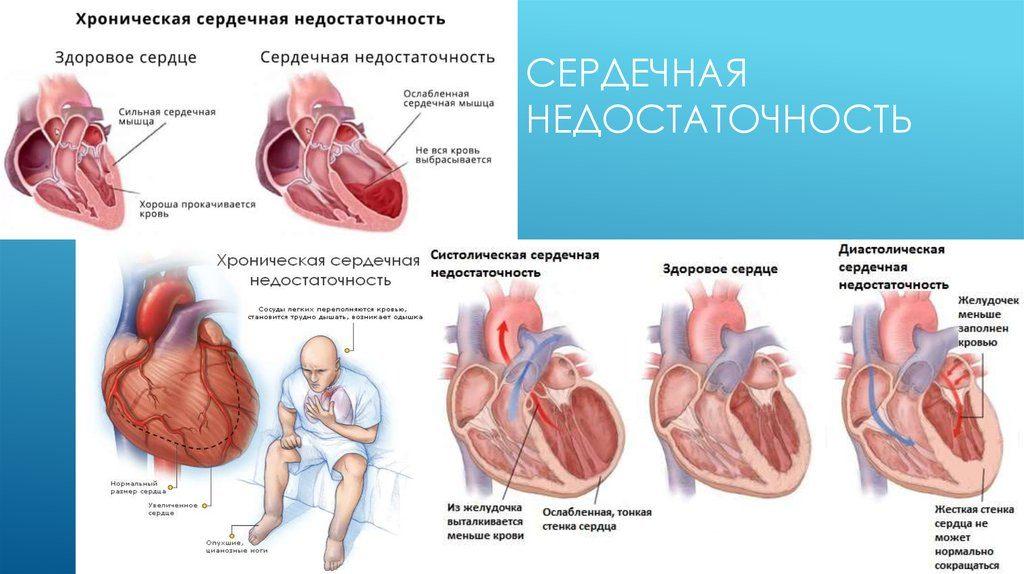 Гидраденит: фото, что это, лечение гидраденита под мышкой