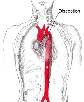 Аневризма грудного отдела аорты