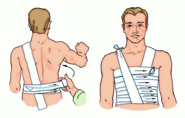 Как правильно лечить ушиб ребра в домашних условиях