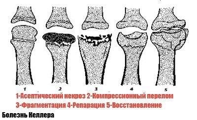 Как лечить болезнь келлера? болезнь келлера - поражение костей стопы болезни келлера стопы человека.