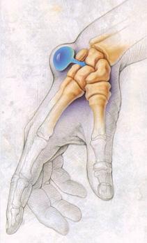 Гигрома лучезапястного сустава кисти: лечение, симптомы, причины