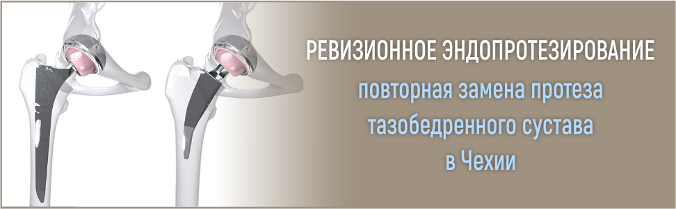Осложнения и боли после эндопротезирования коленного сустава: список основных