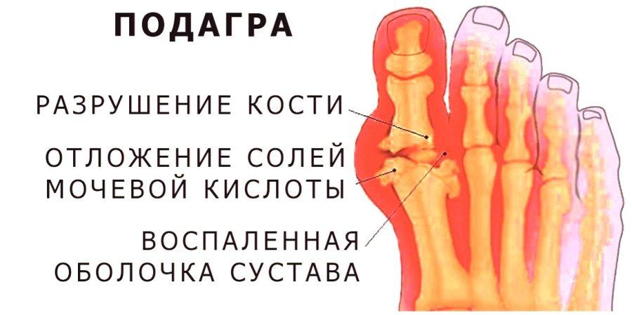 Лечебная диета при артрите суставов: питание при ревматоидной, подагрической и псориатической форме