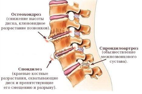 Остеохондроз шейного, грудного, поясничного отделов - симптомы и лечение заболевания - docdoc.ru