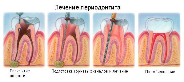 Периодонтит острый и хронический - лечение, симптомы