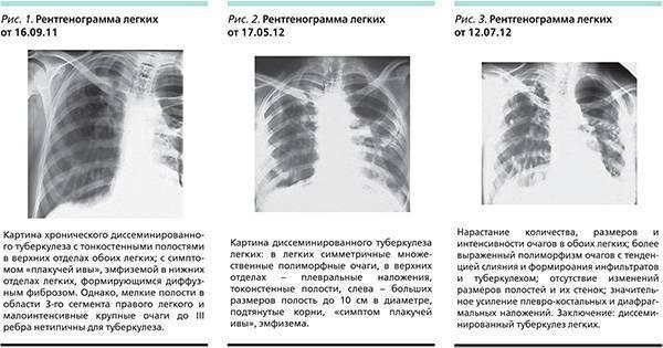 Закрытая форма туберкулеза – симптомы, лечение, можно ли заразиться