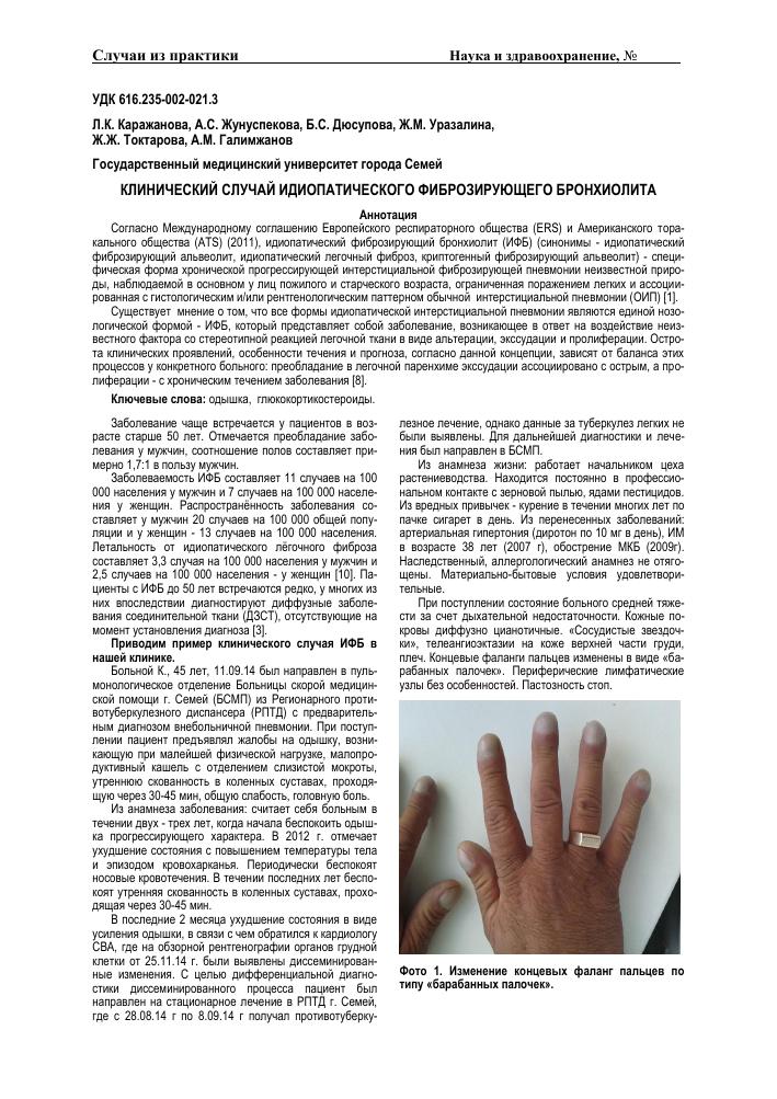Фиброзирующий альвеолит: симптомы и признаки