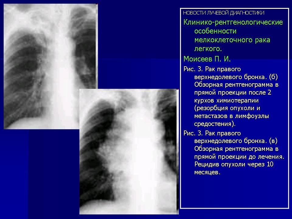 Туберкулез и рак легких