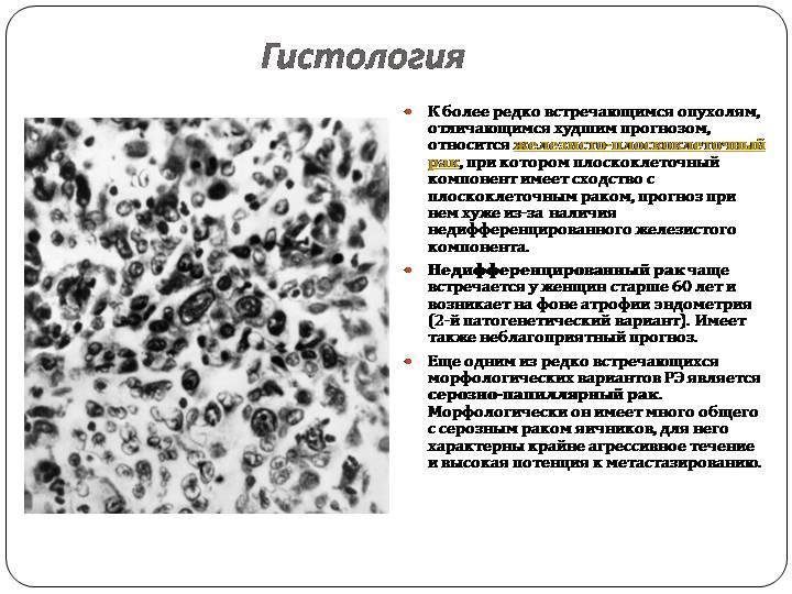 Аденокарцинома - adenocarcinoma