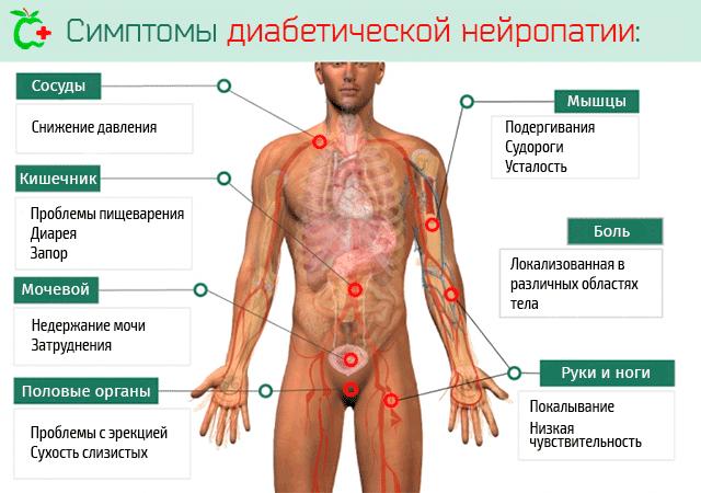 Диабетическая полинейропатия верхних и нижних конечностей