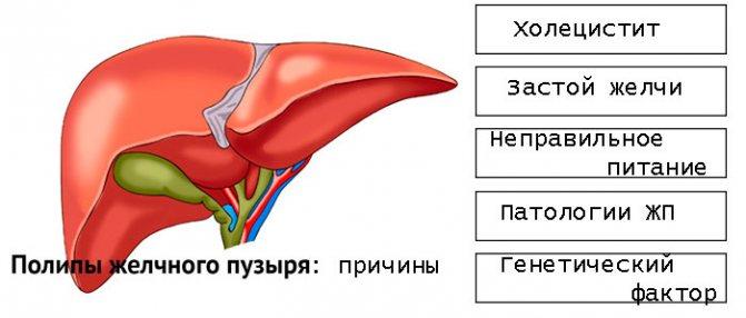 Дискинезия желчевыводящих путей и желчного пузыря – причины, типы (гипотоническая, гипертоническая), симптомы, диагностика и лечение (препараты, диета). причины, диагностика и лечение дискинезии у детей